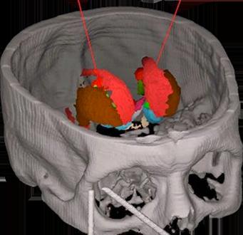 MNPS - Sistema para Planejamento de Neurocirurgia Estereotáxica